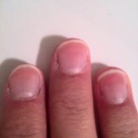 Stoppen met nagelbijten #3