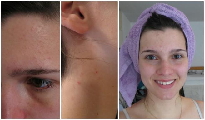 Mijn_strijd_tegen_acne_update_2