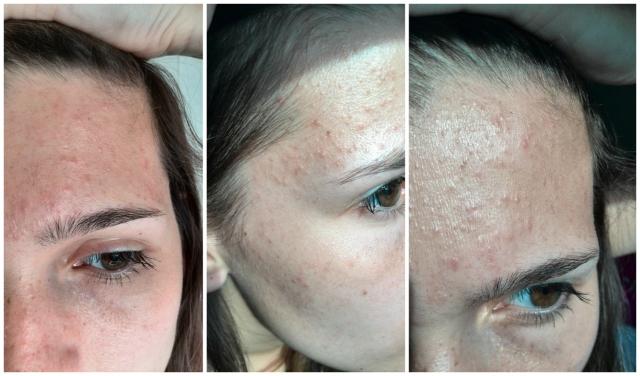 Mijn_strijd_tegen_acne_update_3