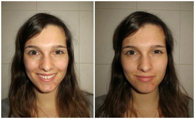 Mijn_strijd_tegen_acne_update_4
