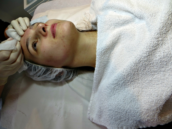Comedonen verwijderen, acnebehandeling Laser Skin Clinics Zwolle Stationsweg 5