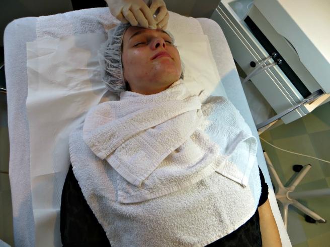 Chemische peeling, acnebehandeling Laser Skin Clinics Zwolle Stationsweg 5