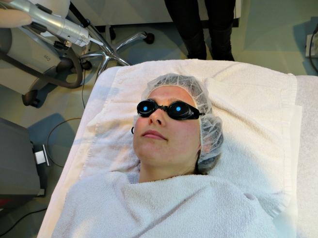 Laser behandeling, acnebehandeling Laser Skin Clinics Zwolle Stationsweg 5