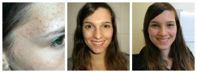 Resultaten voor- en na, acne huidbehandeling Laser Skin Clinics in Zwolle